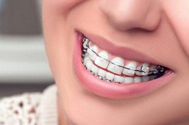 Брекеты на передние зубы, сапфировые
