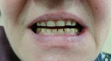 стертые зубы