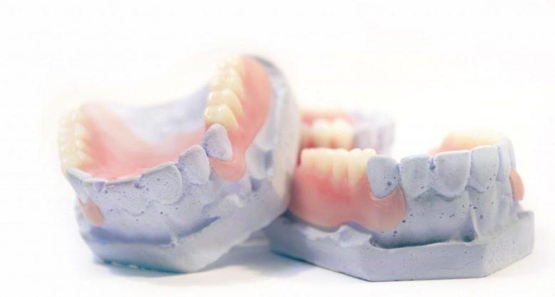 Частично съемный зубной протез