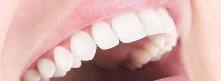 Зубные протезы All-on-4