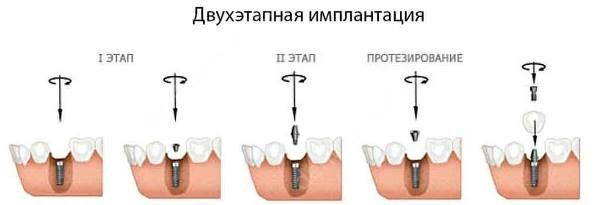 Двухэтапная имплантация