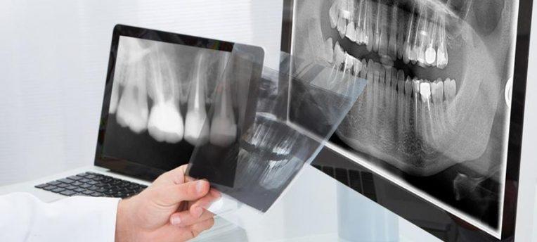зубной снимок