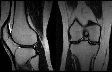 Фото МРТ суставов