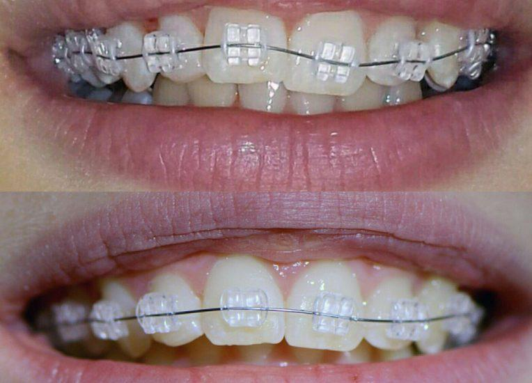 Выравнивание зубов с помощью брекет систем