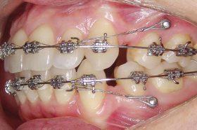 Микроимпланты в ортодонтии