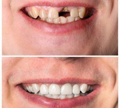 Имплантация зубов до и после