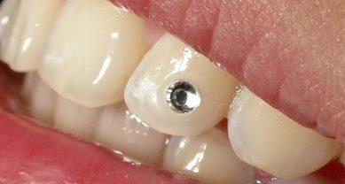 Инкрустация зуба