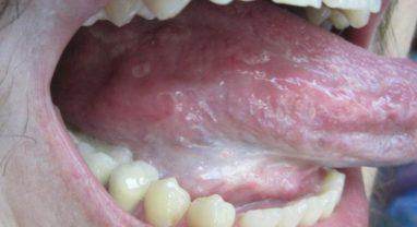 Инфекция ротовой полости