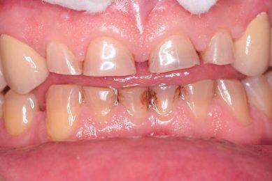 Истирание эмали зубов