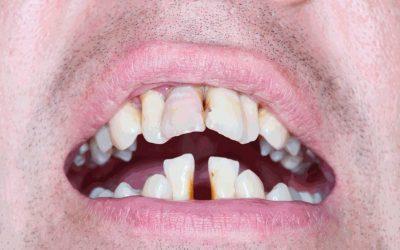 Кривизна зубов