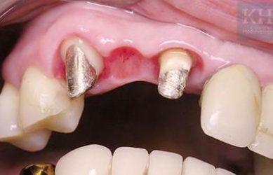 Культивые вкладки из серебра для установки мостовидного протеза