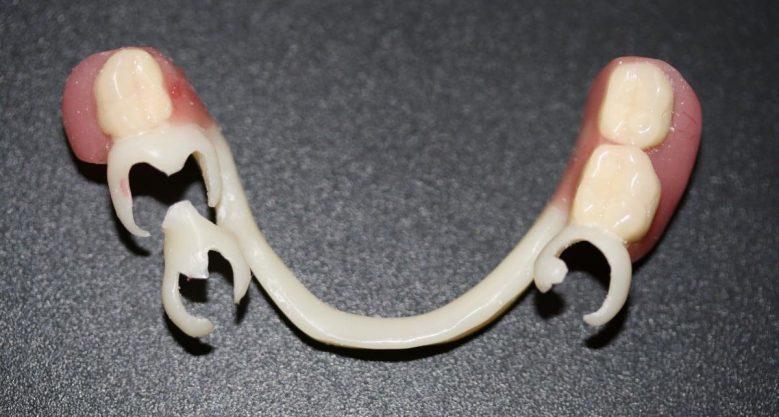 Зубной протез Квадротти