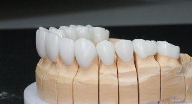 Металлопластиковый протез на каркасе