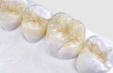 Микропротезирование зубными вкладками