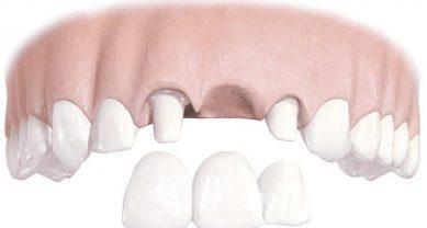 Мостовидный протез на обточенных зубах
