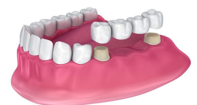 Зубной мост при отсутствие резцов