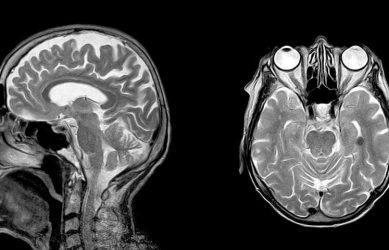 Фото МРТ головного мозга