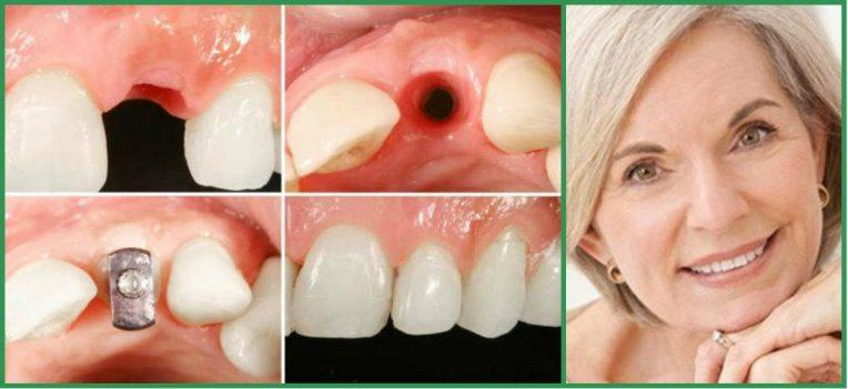 лунка под имплантацию зубов