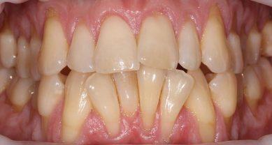 Оголение корней зуба