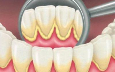 Отложения мягкого налета на зубах