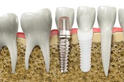 Имплант зуба в десне
