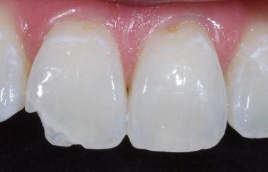 Показания для контурирования зубов