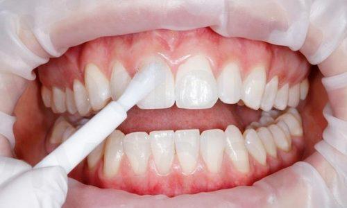 Покрытие зубов фтором