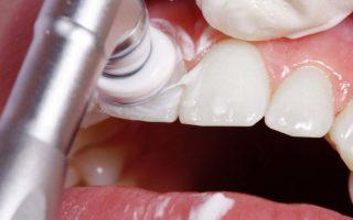 полирование зубов