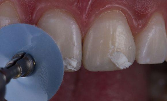 Полировка зубов после ношения брекетов