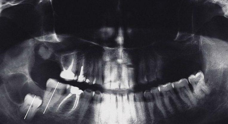 Полная и частичная ретенция зубов