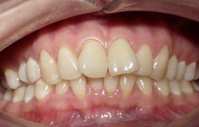 Поворот зуба
