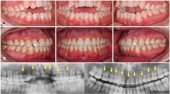 Изображение неправильного ортодонтического прикуса