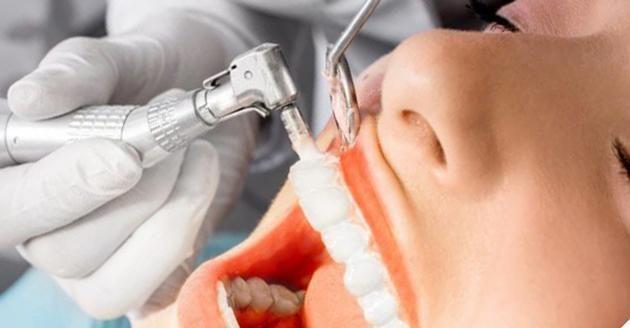 Подготовка к имплантация: санация и профессиональная чистка