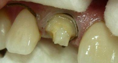 Разрушенная коронка зуба