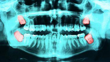 Рентгеновский снимок ретинированного зуба