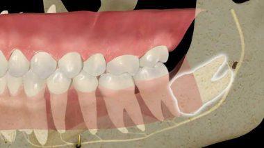 Ретинированный в бок растущий зуб