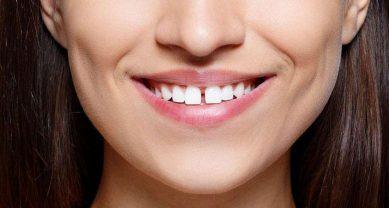 Щели между зубами