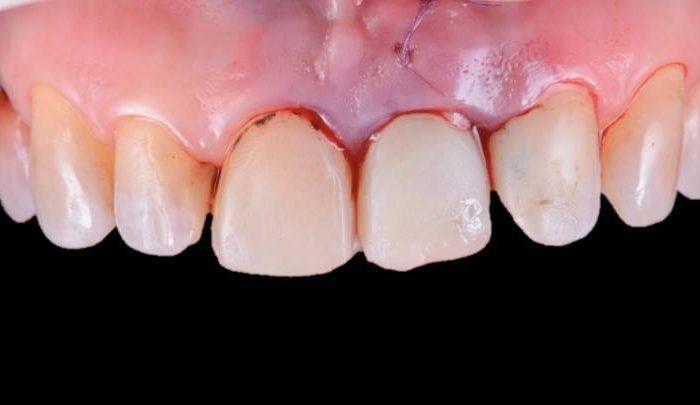 Симптомы перелома зуба