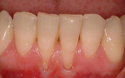 Оголенные зубные корни