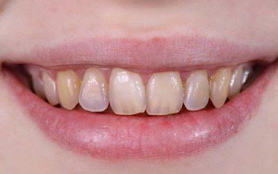 Тонкая эмаль зубов