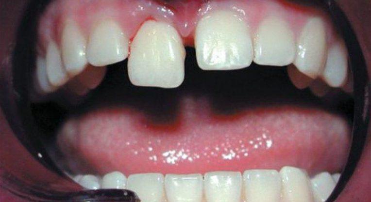 Травма зубов и дёсен