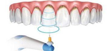 Удаления налета, зубного камня