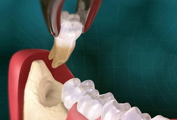 Удаление зуба с перфорацией