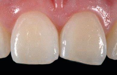 Укорачивание зубов