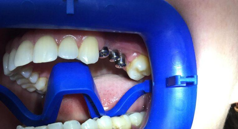 Установка зубного протеза