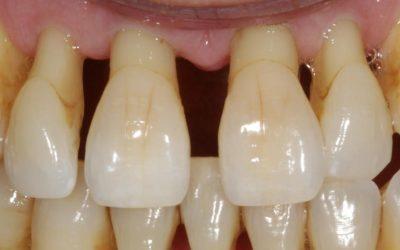 Увеличение расстояния между зубов
