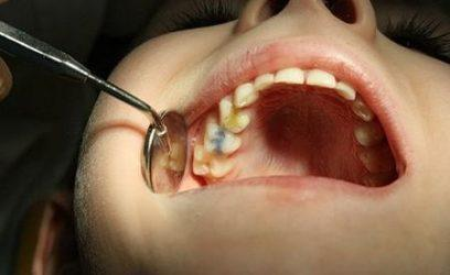 Изменение цвета эмали зуба