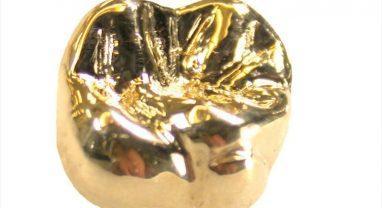 Литая золотая коронка