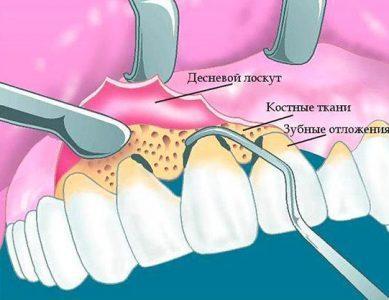 Кюретаж при отложении на зубах